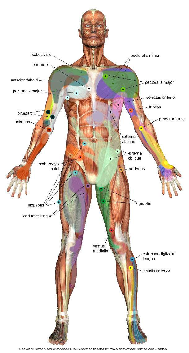 Trigger point diagram on human body